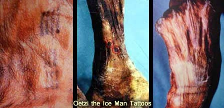 5,300-Year-Old Otzi the Iceman Yields Oldest Known Human Blood