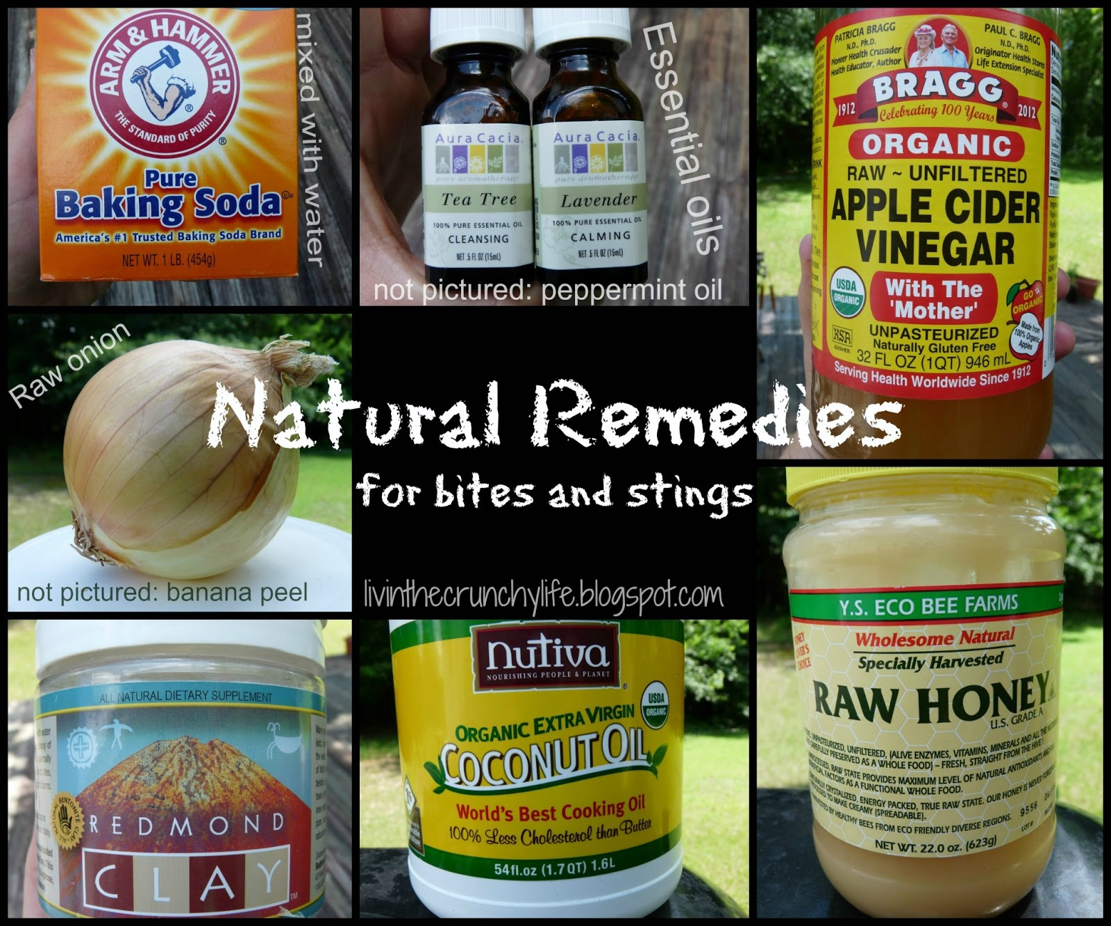 Strange Eight Natural Remedies For Insect Bites And Stings Livin Interior Design Ideas Tzicisoteloinfo