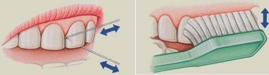 la soie dentaire avant ou après le brossage