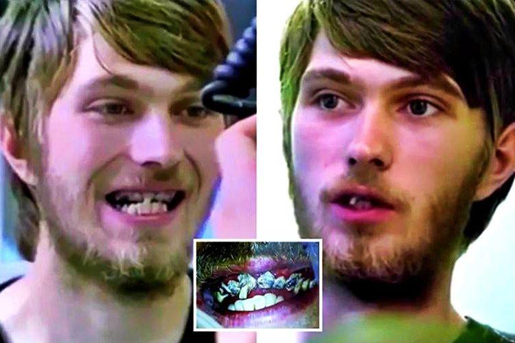 Jay ismindeki 20 yaşındaki bu Britanyalı, ömrü boyunca hiç diş fırçasına dokunmamış.