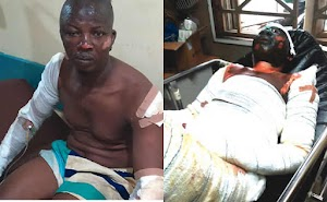 """Lagos Fuel Tanker Fire; """"I saw darkness everywhere immediately the tanker exploded,We Thought The End Had Come"""" – Lucky Survivors"""