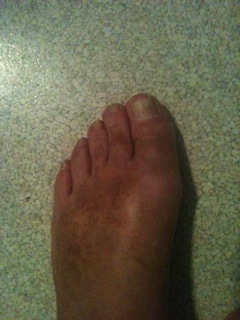 Foot and Ankle Problems By Dr. Richard Blake: Hallux ...