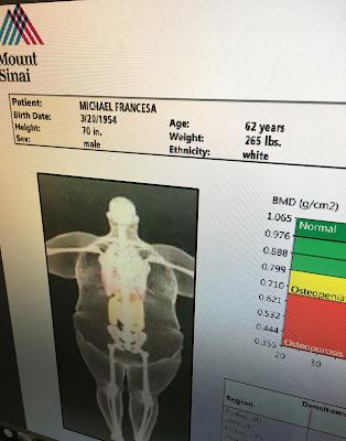 mike francesa bone density scan