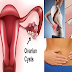 8 Warning Signs Of Ovarian Cyst Every Woman Ignores Until It's Too Late