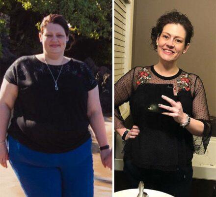 Αυτή η γυναίκα έχασε 70 κιλά σε 2 χρόνια