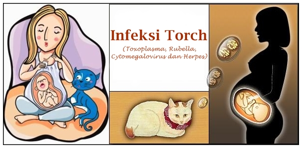 Pengobatan Herbal Infeksi Torch