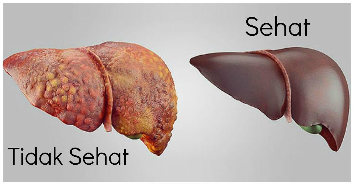 Hubungan antara Metabolisme Karbohidrat, Lemak, dan Protein