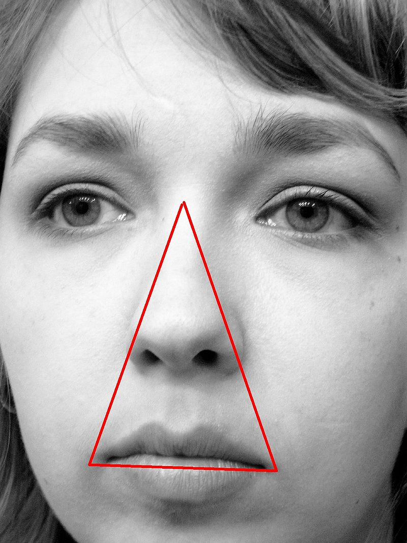 'Danger triangle' of the face