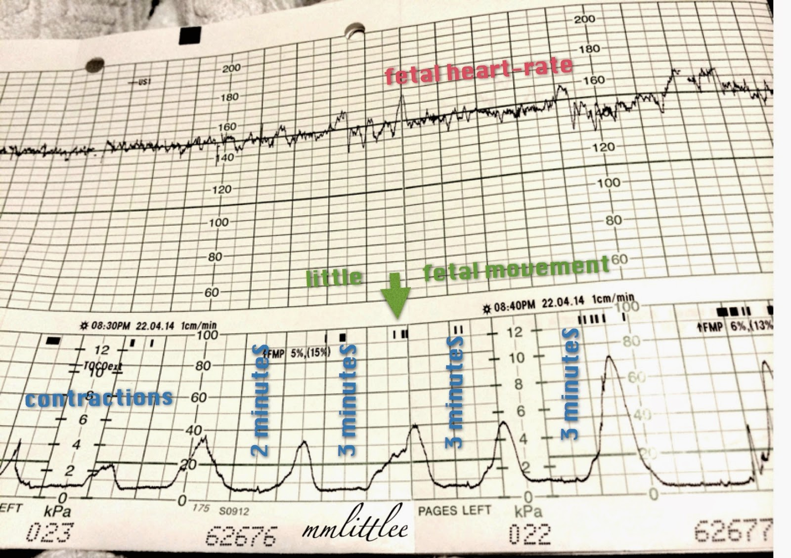 Hit with contractions at 38 weeks pregnant 7