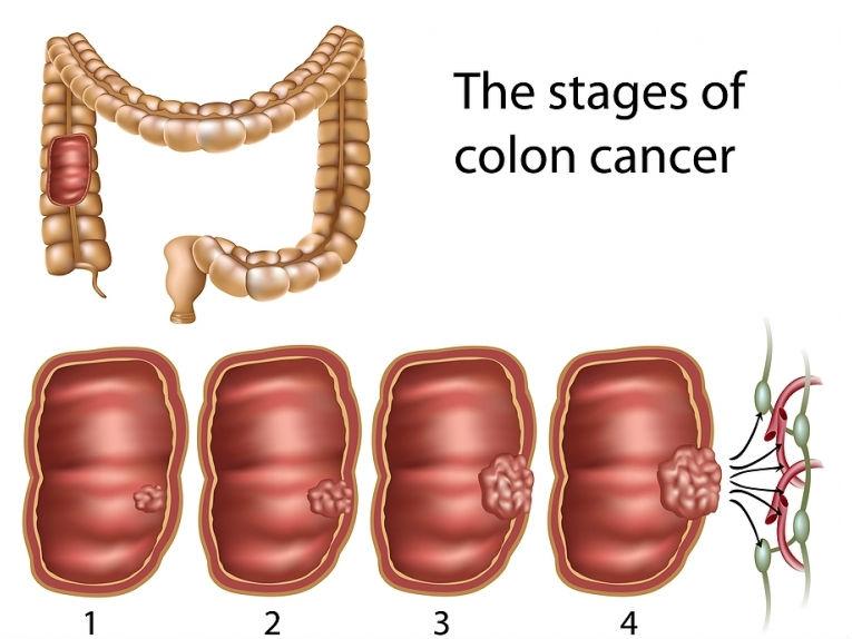 تشخيص سرطان القولون