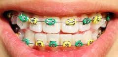 We Care N You Smile: Get It Straight…… Ceramic or Metal ...