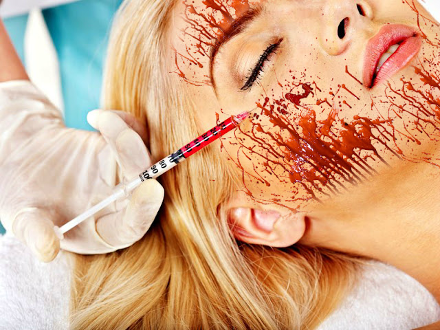 What Is A Vampire Facial And What Are The Benefits, By Barbies Beauty Bits