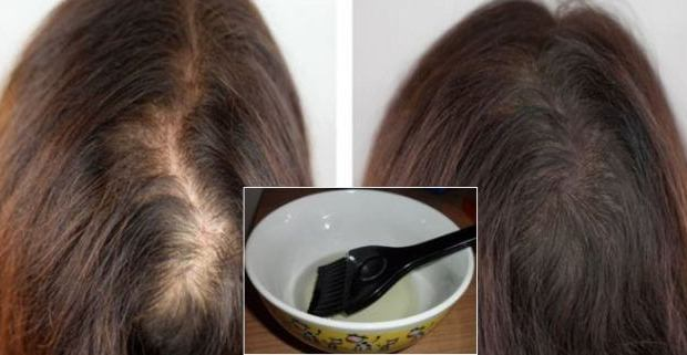 Home Remedies To Grow Hair Faster With Castor Oil
