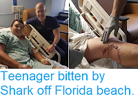 http://sciencythoughts.blogspot.com/2018/05/teenager-bitten-by-shark-off-florida.html