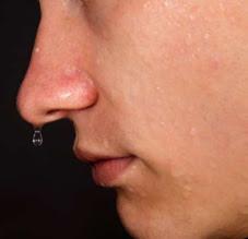 penyebab-dan-cara-mengatasi-keringat-berlebih-di-tubuh