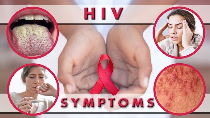 Ten HIV Symptoms To Watch Out For In Women – Guys, See How To Know If She's HIV Positive..