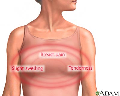 Breast soreness after menopause