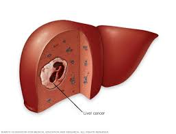 Learn the causes of primary liver cancer