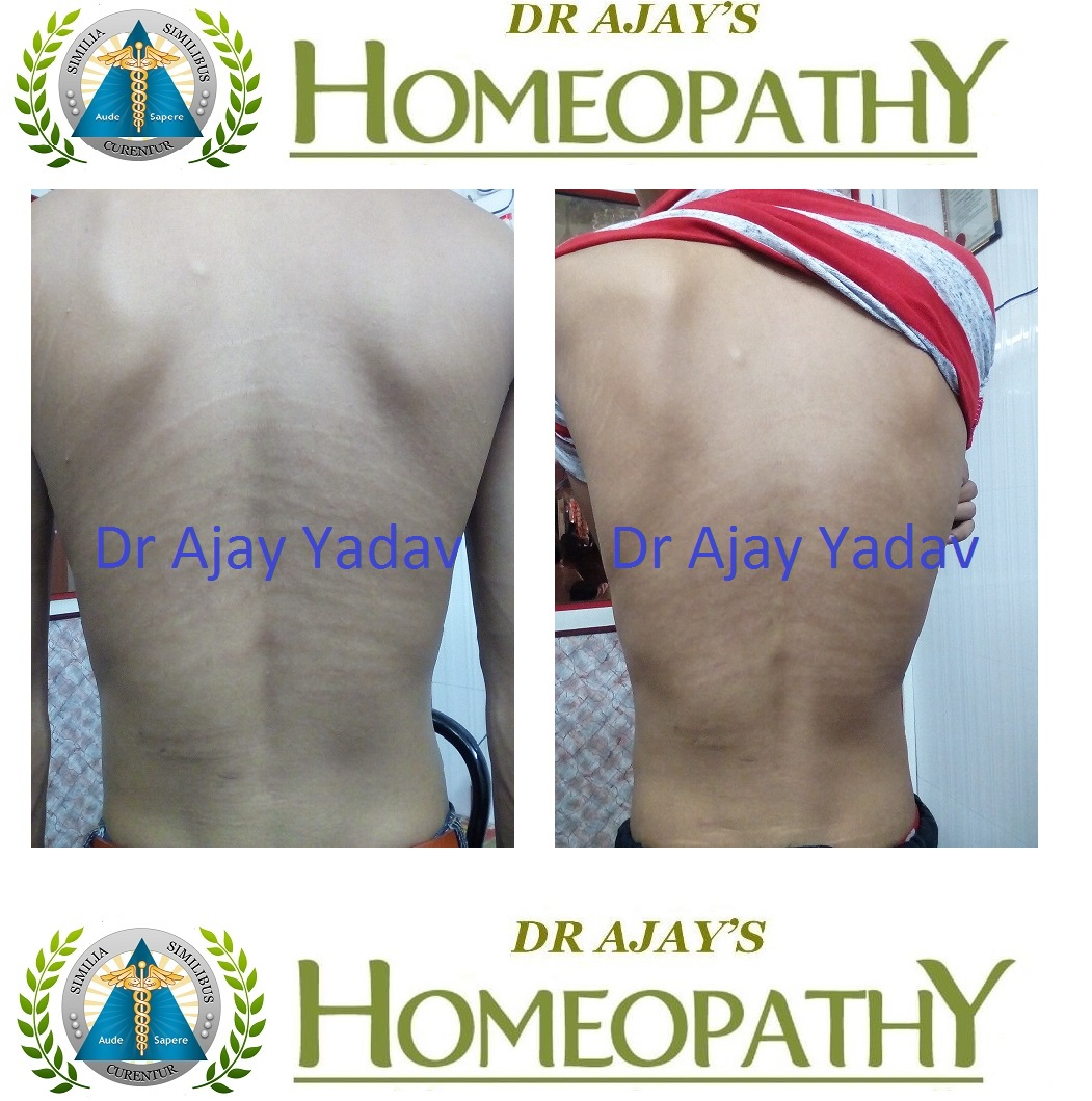 Dr Ajays Homeopathy : Homeopathy for Streach marks