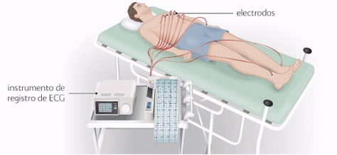 REALIZACION DE ELECTROCARDIOGRAMA EBOOK DOWNLOAD