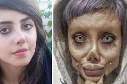 Di Balik Wajah Cantik Wanita yang Ingin Mirip Angelina Jolie