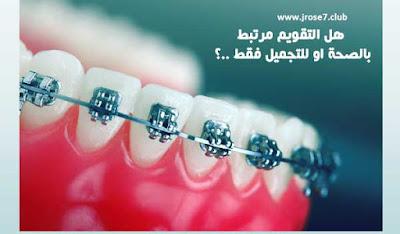 الوان تقويم الاسنان,انواع تقويم الاسنان,تقويم الاسنان,افضل تقويم اسنان,افضل معجون اسنان للتقويم
