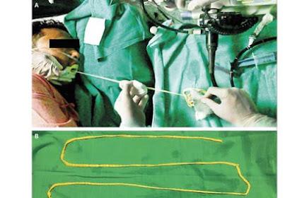 Ngeri... Dokter Keluarkan Cacing Pita Babi 1,8 Meter dari Mulut Pria Ini, Catatan Buat Penggemar Babi!