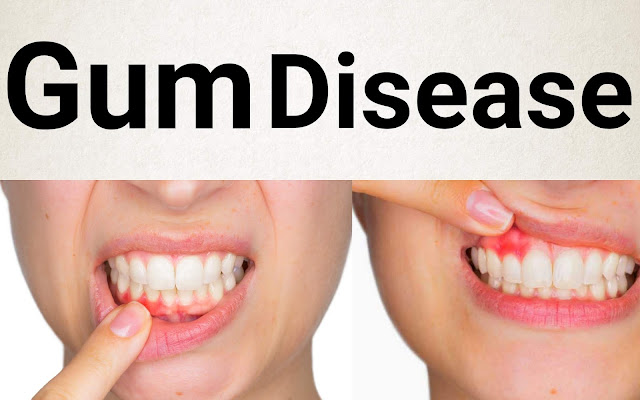 Gum Disease (Gingivitis) Causes, Symptoms and Treatments - Health Intimation