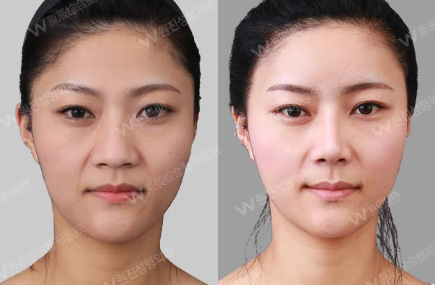 짱이뻐! - [Before and After Photos] Korean Rhinoplasty