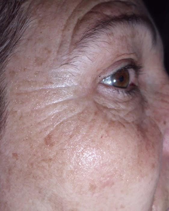 pure retinol
