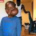 Child with face tumor Matadi Sela Petit has died