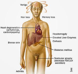 diabetul bronzat