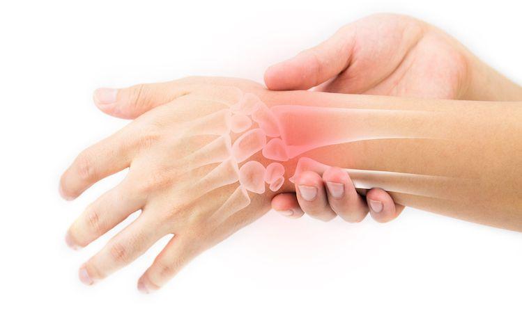 التهاب تينوسينوف: التهاب في القدمين واليدين تحتاج إلى معرفته