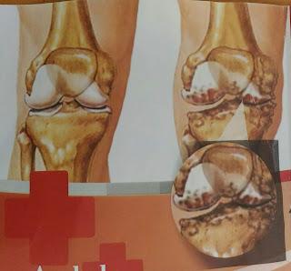persendian sering nyeri atau muncul rasa sakit?