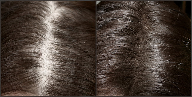 Пудра для волос MIUM от RH Professionails, пудра для волос, объем для волос, густые волосы, проплешины на голове, цветная пудра для волос, миум, пудра миум