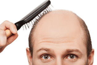 Hair Loss Front Of Head Female
