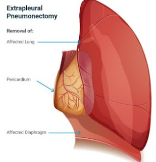 EPP Surgery Still Plays Important Role in Mesothelioma Treatment
