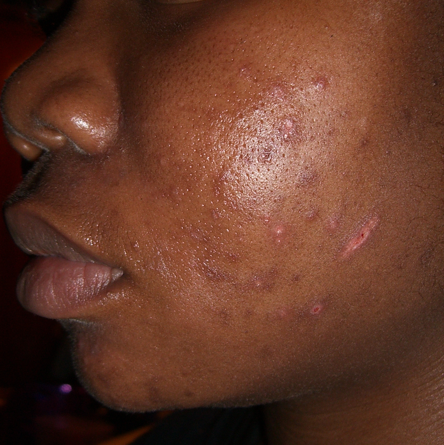 Black Rash On Skin Pictures Photos