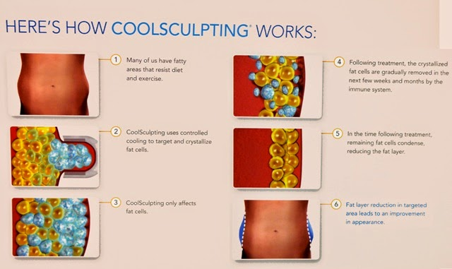 EHA Clinic Zeltiq Fat Freeze CoolSculpting Treatment Review