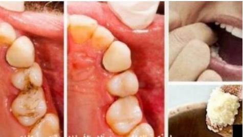 في المنزل فقط وباليل حيل ذكية للتخلص من آلام الأسنان فوراً..... وصفة منزلية محكمة