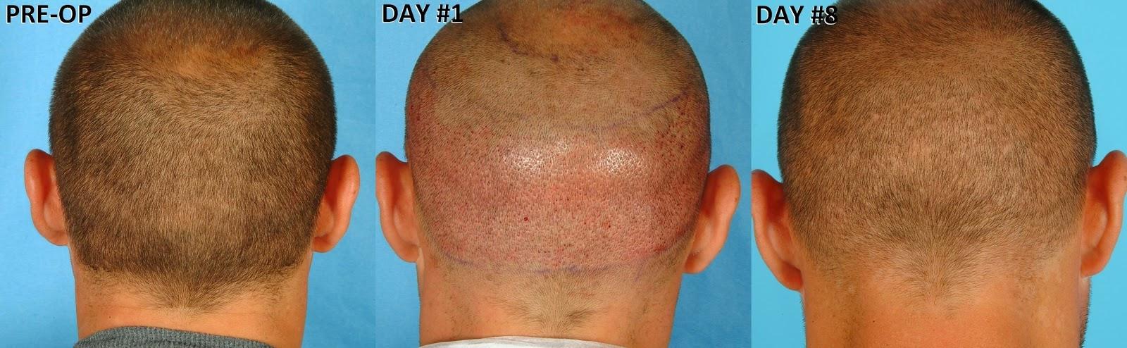 machine gun hair transplant