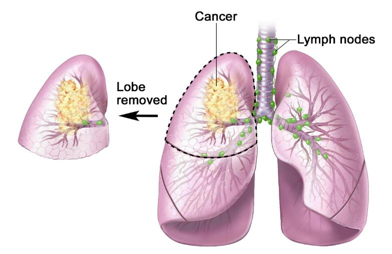 Stage 4 Non Small Cell Lung Cancer Life Expectancy