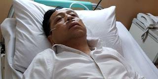 Waduh .. Katanya Kalau tidak cepat dirawat di Singapura, Setya Novanto bisa lupa ingatan !