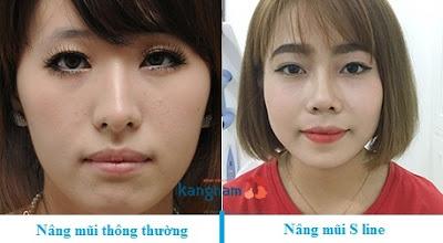 Khi nâng mũi bạn cần phải để ý những điều cấm kị nào???