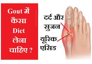 gout-high-uric-acid-diet-food-tips-in-hindi