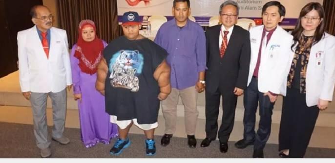 Diet Ketat ala Arya Si Bocah Obesitas, Pangkas Berat Badan hingga 112 Kg