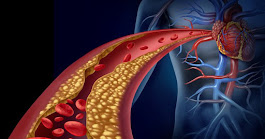 20 Foods That Will Clean Your Arteries Naturally And Protect You From Heart Attack