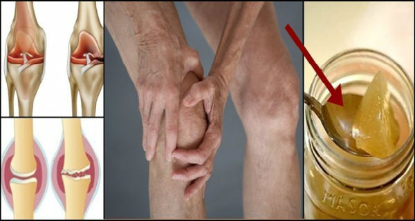 The Root Of The Knee Pain Is A Damage Of The Cartilage, So This Is How To Naturally Regenerate It!