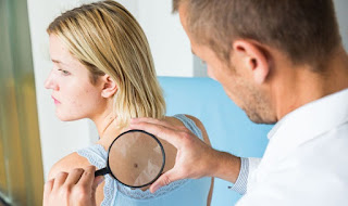 SYMPTOMS OF SKIN CANCER: SEVEN SIGNS YOUR SPOTS COULD BE CANCEROUS
