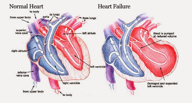 Heart Failure Is A Dangerous Type Of Disease You Must Know